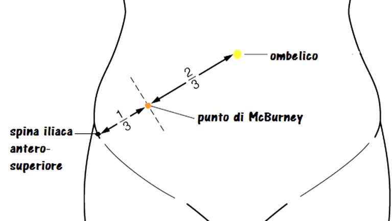 Questa immagine ha l'attributo alt vuoto; il nome del file è i-punto-di-Macburney.png