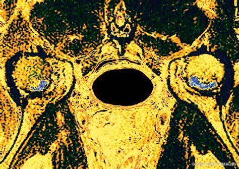 L'osteonecrosi disbarica, un nemico subdolo ma, per fortuna, raro di Luigi Santarella (SIMSI)